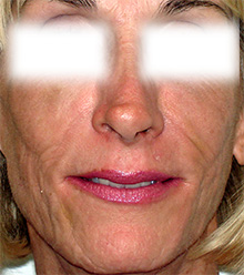 Radiesse For Facial Lipoatrophy From Aloha Dermatology And