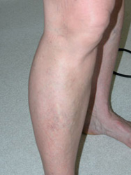 After Sclerotherapy Vein Treatment from Aloha Dermatology on Maui