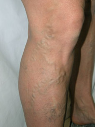 Before Sclerotherapy Vein Treatment from Aloha Dermatology on Maui